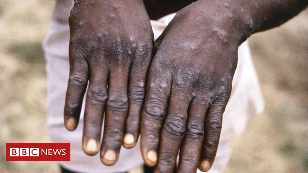 monkeypox:-more-than-200-contacts-tracked-in-us-for-rare-disease